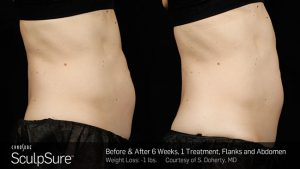 SculpSure Belly Wellesley