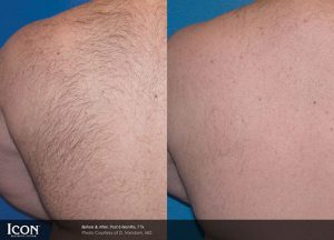 before and after hair removal photos