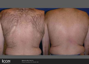 before and after back hair removal