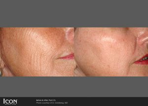 before and after Photorejuvenation treatments