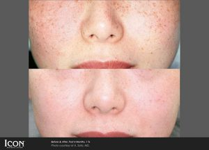 Photorejuvenation before and after photos