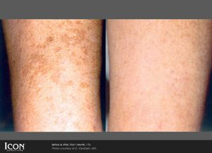 Photorejuvenation treatments before and after for the arm