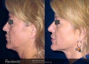 Precisiontx Chin Augmentation