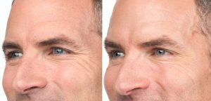 before and after photos of male Botox