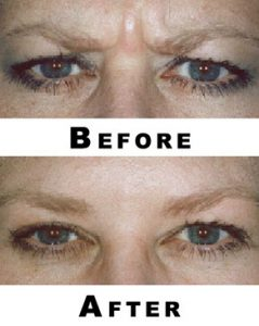 Before and after photos for Dysport treatments