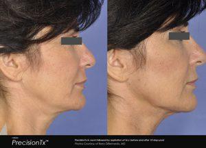 precisiontx-neck-chin-jawline