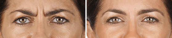 Xeomin Before and After results