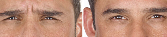 Xeomin Before and After results for Men